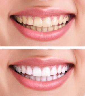 Zoom Whitening in Buffalo, NY